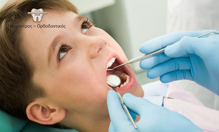 Sealants οπισθίων δοντιών, μια καινούργια μέθοδο πρόληψης ενάντια στην τερηδόνα, γρήγορη και ανώδυνη ειδικά για μικρά παιδιά με κάλυψη οπών και σχισμών