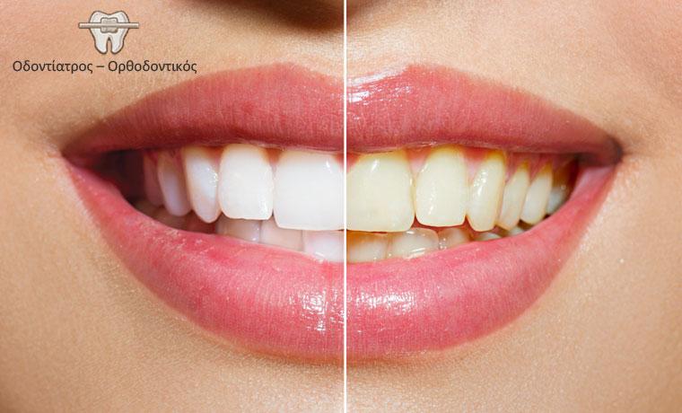 Λεύκανση δοντιών με υπέρυθρη ακτίνα σε μόλις 60 λεπτά, για ένα λαμπερό χαμόγελο στο Παλαιό Φάληρο